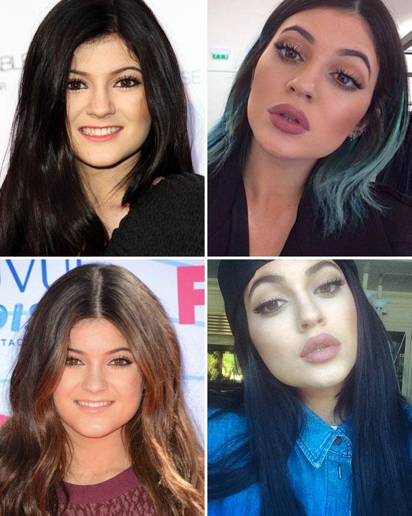 Recent photos of Kylie have sent fans into a frenzy -- has she injected filler into her lips? We reached out to 6 plastic surgeons -- and they all say yes! Kylie Jenner, 17, is naturally beautiful,...