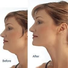 Facial exercises to get rid of a double chin