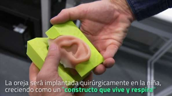 Los niños y niñas con malformaciones en las orejas están a punto de ver cómo cambian sus vidas gracias a unos investigadores de Brisbane, Australia que han desarrollado un nuevo tipo de prótesis de oreja. La pequeña Maia nació sólo con una, pero pronto será dotada de la primera oreja de su tipo imprimida en 3D.
