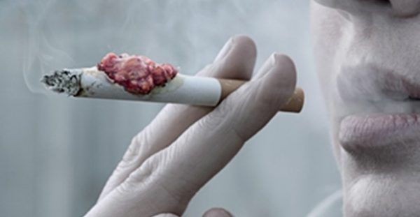 Θέλετε να κόψετε το κάπνισμα