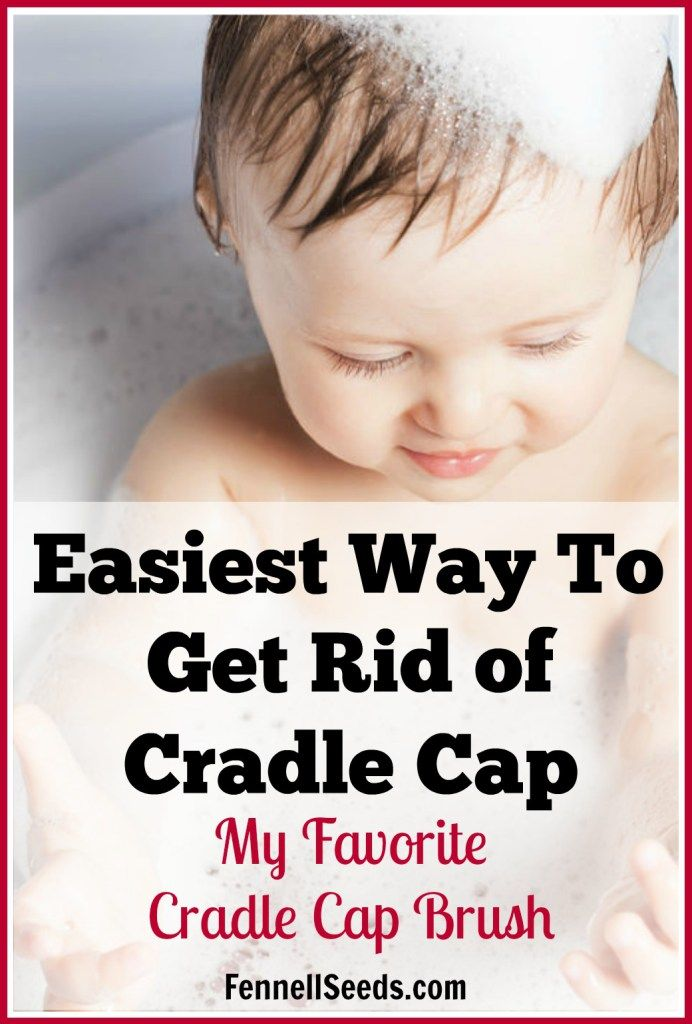 Cradle Cap | Cradle Cap Brush | Rid of Cradle Cap | My kids had terrible cradle cap. This cradle cap brush works awesome. I wasn't scared to use it on my baby because it has soft rounded rubber bristles. I used it every day for years.