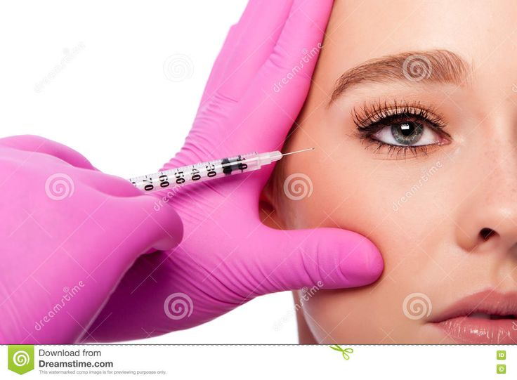 Beauty Collagen Filler Injection In Crows Feet At Eye Stock Photo - Image: 80863789