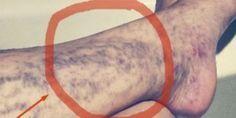 Las venas varicosas o Los capilares son fenómenos desagradables y feas debajo de la piel, que no sólo se ve feo, pero también tiene otras consecuencias y nos sentimos incómodos y siempre tenemos que llevar la ropa más tiempo. Las mujeres saben mejor lo que es esto.