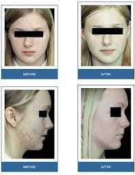 FINALLY DRUG FREE TREATMENT FOR ACNE- OMNILUX LIGHT THERAPY  Book an appointment now with Angela on  0410 911 416