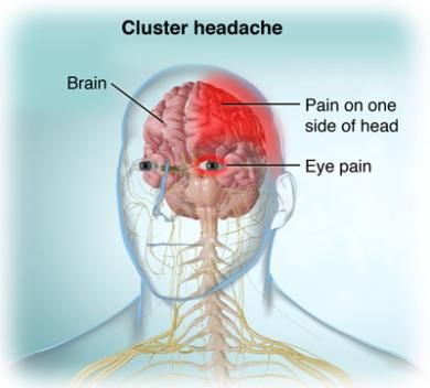 Get paid to cure your cluster headaches with this new study/trial! cluster headache natural remedies