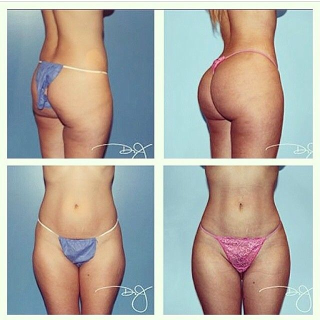 Fat Transfer: Lipo of abdominal flanks, lower back and transferred to buttocks. Performed by Dr.J CALL for your FREE consultation (800) 788-1416 mention Instagram  #beauty #beverlyhillsphysicians #bea