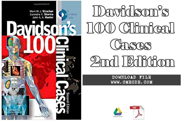 Download Davidson S 100 Clinical Cases 2nd Edition Pdf Pdf