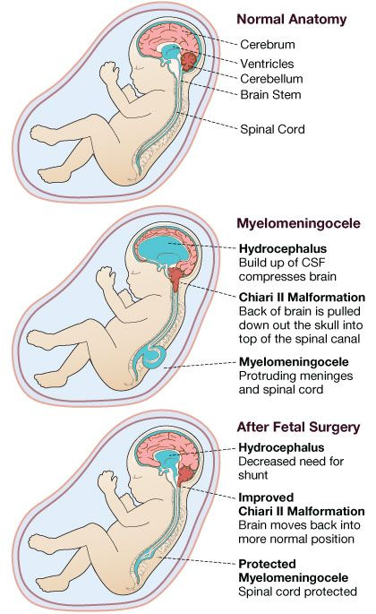 """http://aboutspinabifida.blogspot.com/2012/06/prenatal-surgery-moms-study.html I Want to Learn About Spina Bifida """"For mothers, fathers, aunts, uncles, grandparents, great grandparents, friends, teachers, students or anyone who wondered """"What is Spina Bifida""""."""""""