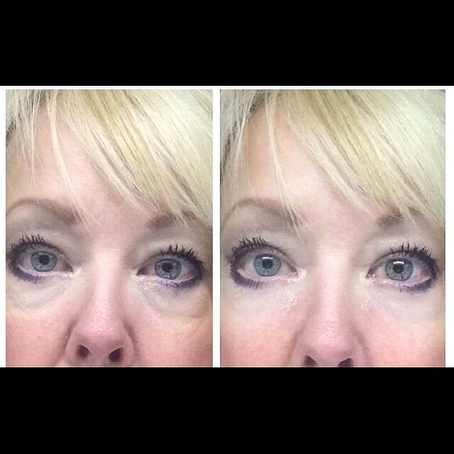 Instantly Ageless! This product is amazing....and affordable!!! Better than Botox! No needles! Just dab and let dry and watch the magic!! https://khoracek.jeunesseglobal.com/