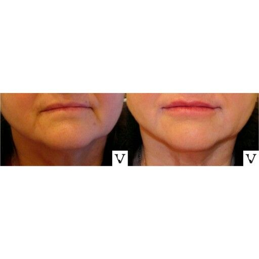 Corners of the mouth start folding inwards with age. I try to open them back up with significantly helps with the appearance of marionette lines as well. Here: lip augmentation and marionettes correction with Restylane  &  Radiesse #botox #boston #rhinoplasty #nosejob #alternative #injection #expert #newton #asymmetry #correction #reconstruction #hiv #lips #eyes #beauty #taste #youth #young #proportion #selfesteem #juvederm #belotero #merz #galderma #allergan #botox #sculptra #chin…