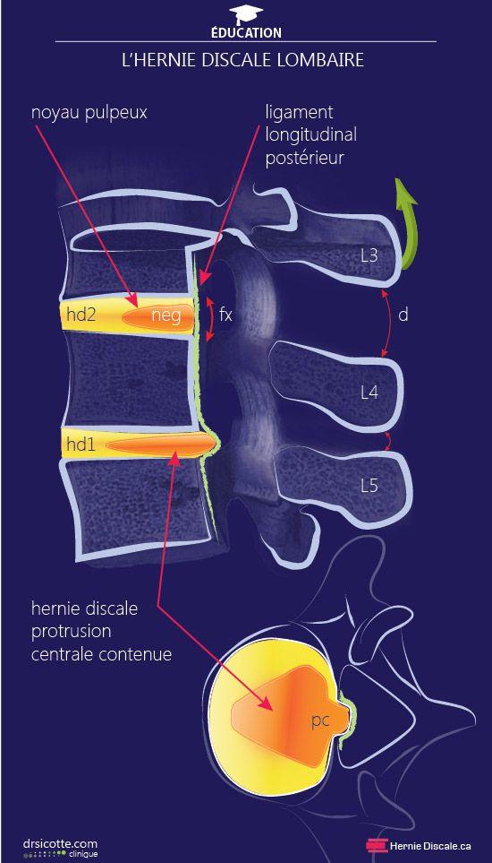13 best Anatomie images on Pinterest | Anatomy, English grammar and ...