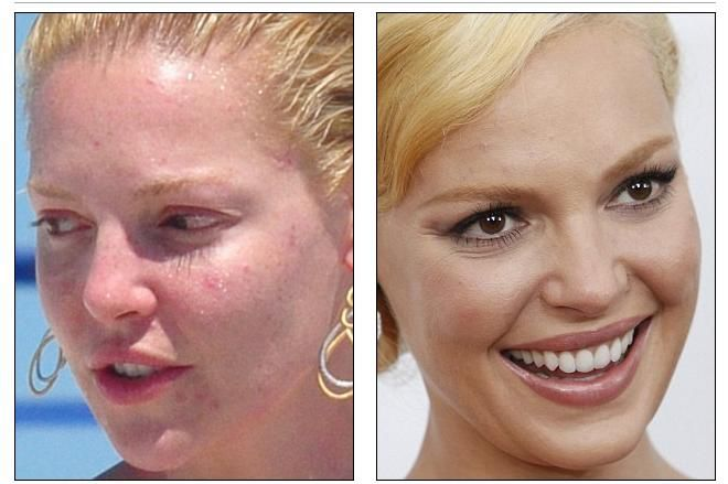 Catherine Heigl Before and After Make Up