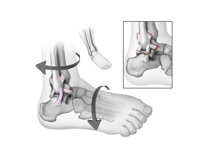 Sprained Ankle-OrthoInfo - AAOS