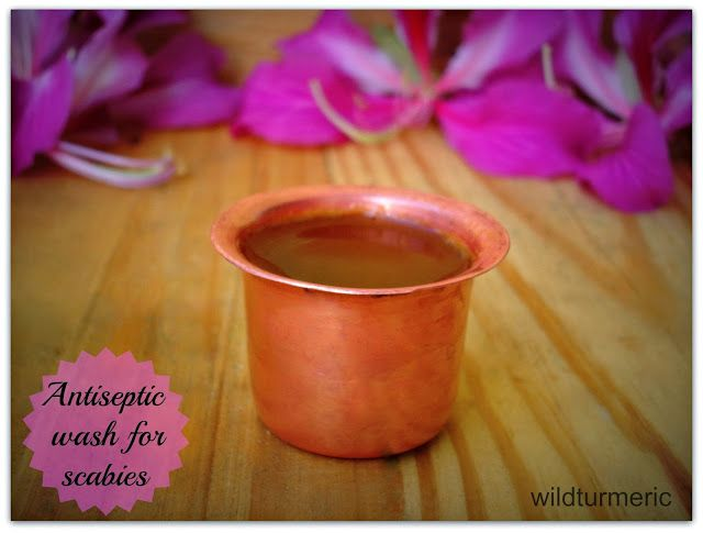 All Natural Home Remedy For Scabies