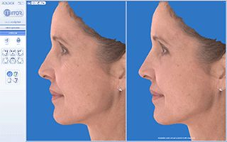 See your results simulated in 3D before surgery.