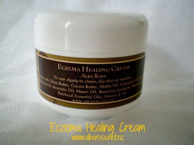 Eczema Healing Cream