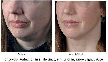 flexaway system facial exerciser