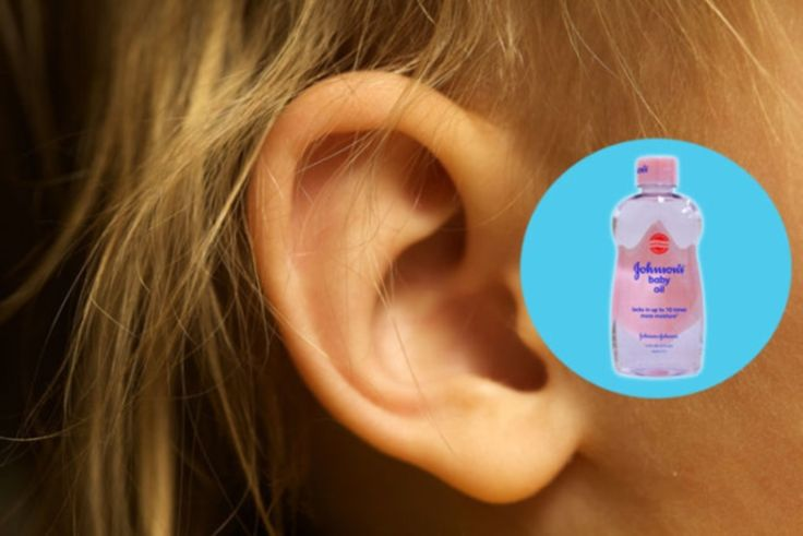 Aplica unas gotas de aceite en el oído para suavizar tapones de cera.