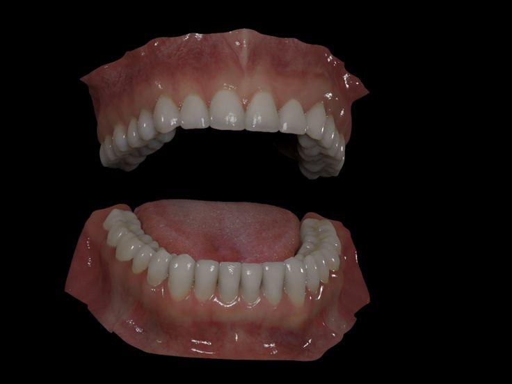 Click image for larger version  Name:dents du bas 0307.jpg Views:644 Size:172.7 KB ID:24310