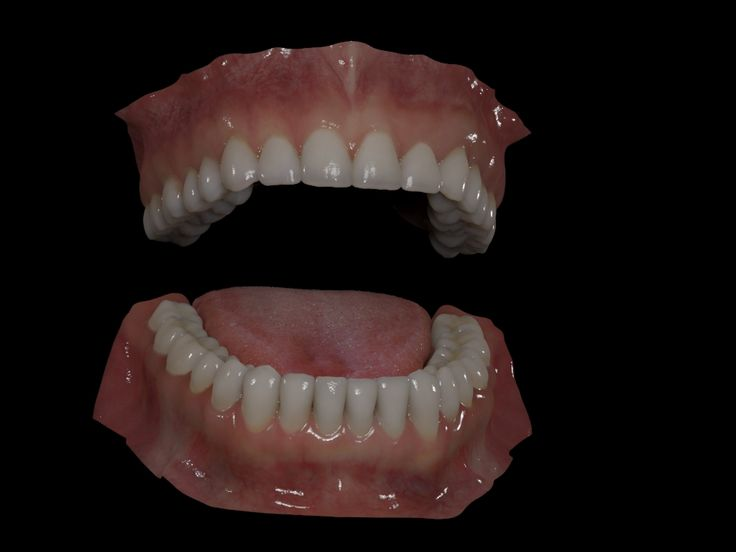 """New Generic Teeths"" by Luc Bégin 