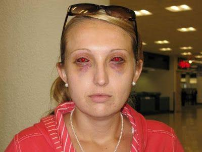 accident de snorkeling 5   accident de snorkeling   visage tuba snorkeling PMT plongee photo palme masque image belize accident