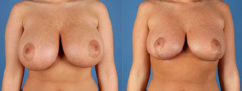 Australia Cosmetic Clinic in Brisbane provides the breast reduction surgery procedure which removes excess fat, tissue and skin from the breast by expert breast surgeon. Book your initial consultation.