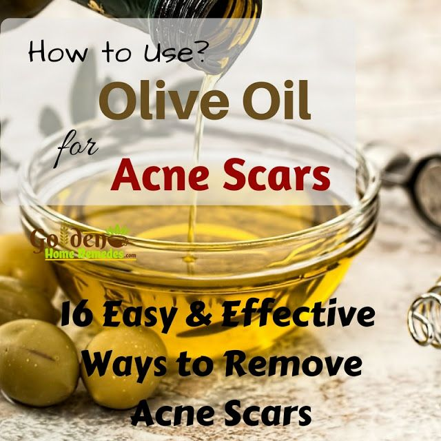 Easy Ways To Use Olive Oil To Get Rid Of Acne Scars, Olive Oil For Acne Scars: How To Get Rid Of Acne Scars