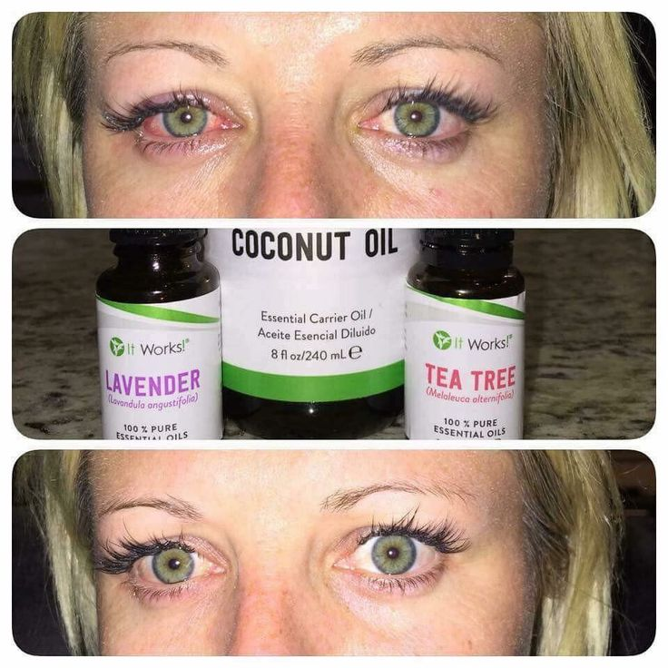 ATTENTION!! An amazing teammate of mine woke up Sunday morning with an awful case of pink eye! She simply mixed our ItWorks coconut oil, tea tree oil, and the lavender essential oils together and rubbed it around her eyes and along the bridge of her nose (as if she were drawing on glasses!) twice that night and the next morning and these were her results!! These products really work, try them out for yourself! •carlihurtado•itWorks•com•