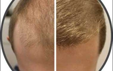 Yes, your home is where you can find the most natural remedies or hair loss cure. This article explains the stuff you normally find at home that are proven to effective hair loss cures.