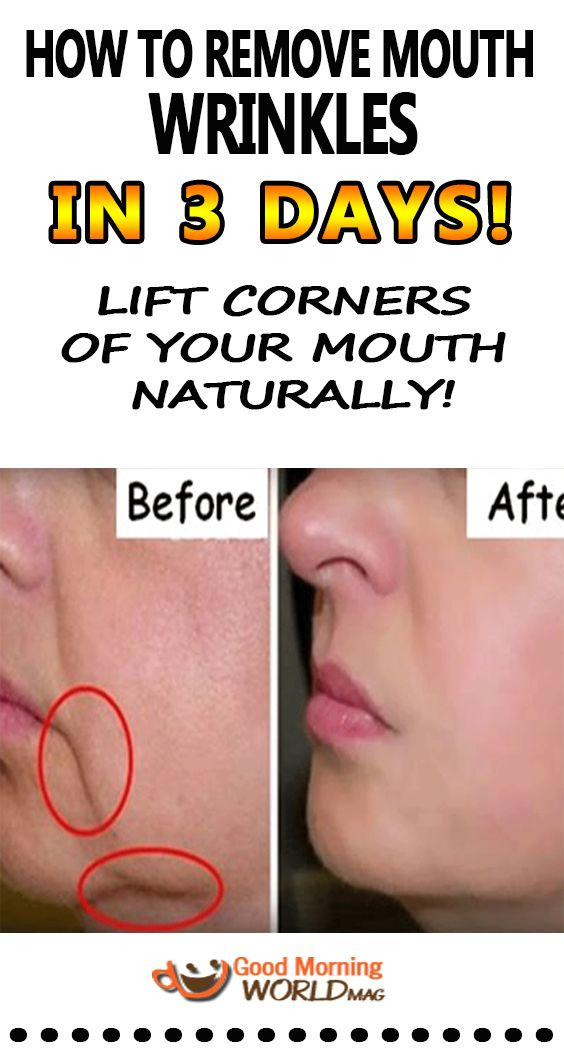 How To Remove Mouth Wrinkles In 3 Days – Lift Corners Of Your Mouth Naturally!
