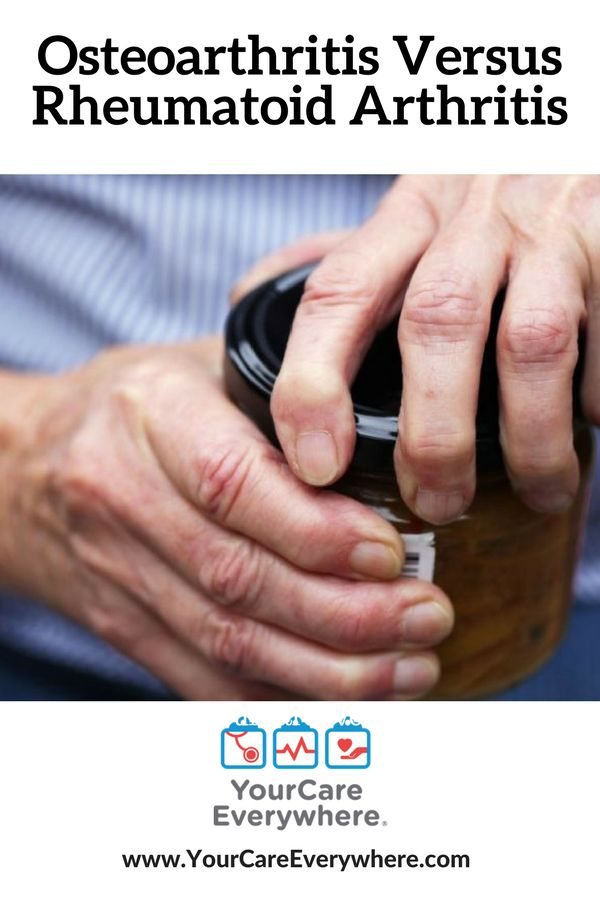 These two forms of arthritis have different symptoms and treatments. Here's what you need to know about osteoarthritis versus rheumatoid arthritis.