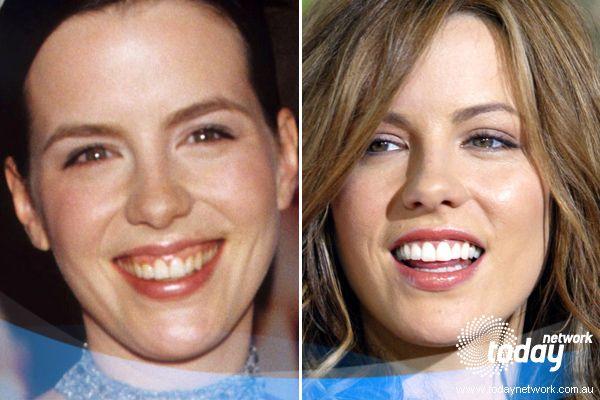 Celebrity cosmetic dentist nyc
