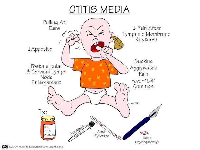 Nursing Mnemonics And Tips Otitis Media Medical
