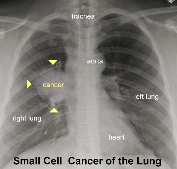 a scientific description of the cancer cells progression to infiltrate the lungs The role of tumor-infiltrating lymphocytes in development, progression, and   lung cancer consists mostly of non–small cell lung cancer (85%) it is our most   the same research group assessed the impact of tlss on the characteristics of.
