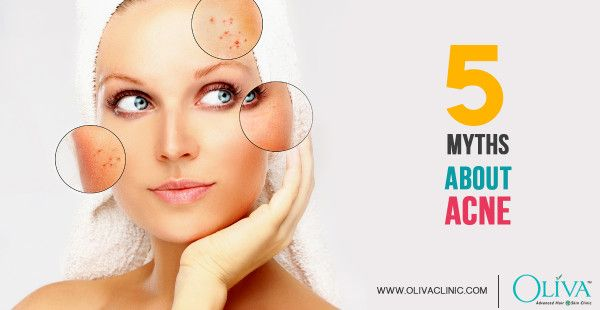 Top 5 Myths about Acne that You Should Stop Believing Right Now https://www.olivaclinic.com/blog/top-5-myths-about-acne/
