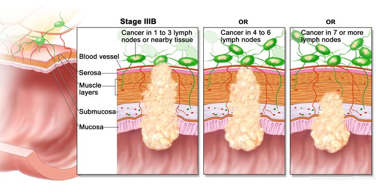 The Benefit and Tolerability of Adjuvant Chemotherapy in Elderly Stage III Colon Cancer Patients