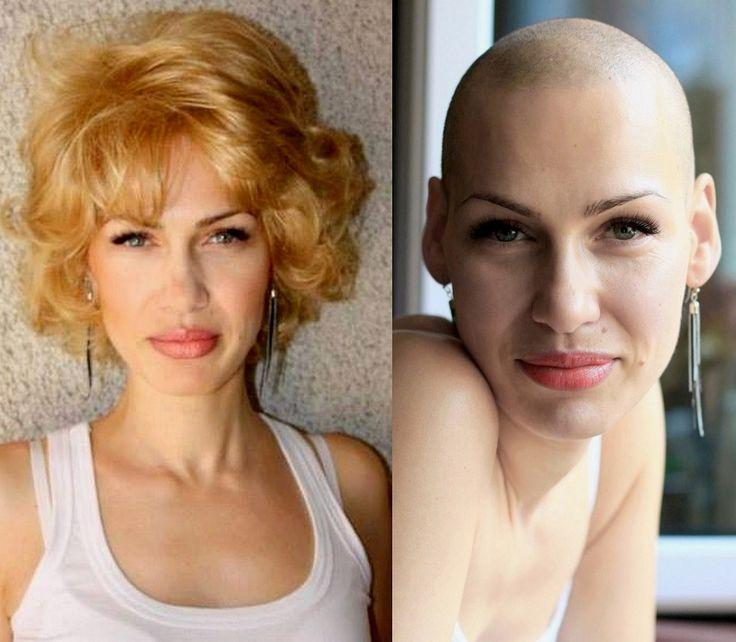 453 Best Bald Women Images On Pinterest