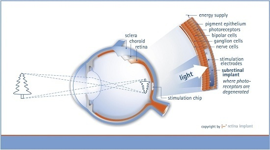 Retinal Implant Brings Eyesight To The Blind - The first human clinical trials for a retinal implant have been a success – allowing those who had been blind to see again.