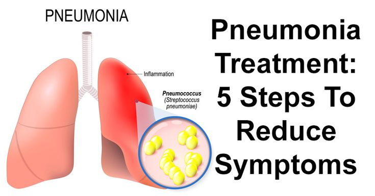 Pneumonia is an infection that inflames the air sacs, in either one or both lungs. It can be mild, however, pneumonia can also be life-threatening. (1) However, to help manage symptoms, there are a variety of pneumonia treatment methods. Traditional treatment for pneumonia includes antibiotics, pain relievers and fever reducers. You should seek medical care …