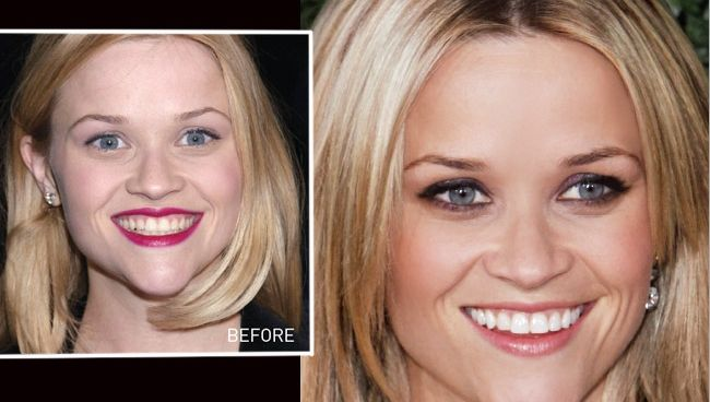 Six Best Celebrity Teeth Before and After Dental Makeovers