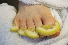 MYCOSE ongles ■ submerger les pieds atteints ds 1 bain d'eau avec qqes gttes de jus de citron, ou bien mettre 1 compresse de jus de citron pdt 10mn. Bien rincer et sécher les pieds.