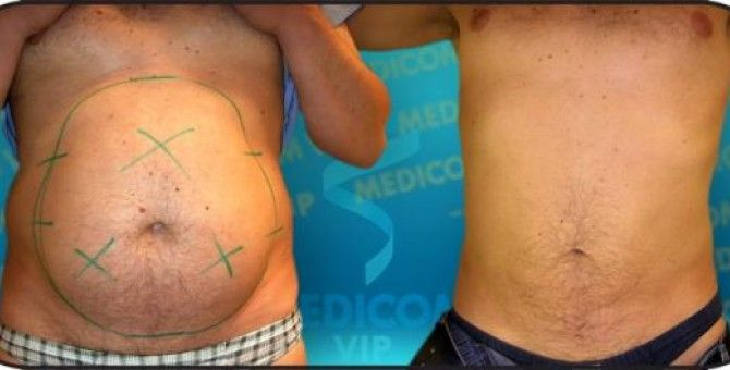 Fees For Tumescent Liposuction