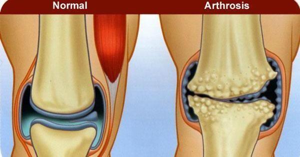 ¿Qué diferencia la artritis de la artrosis?