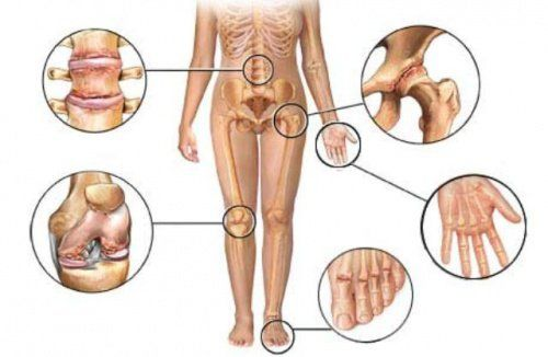 The regular use of certain herbal remedies can help reduce arthritis pain and improve your quality of life.