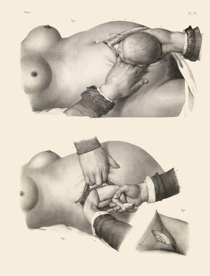 Free extreme fisting and bondage porn