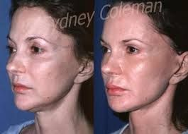 fat grafting to face before and after photos - Google Search