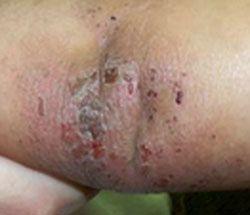 seborrheic dermatitis eczema