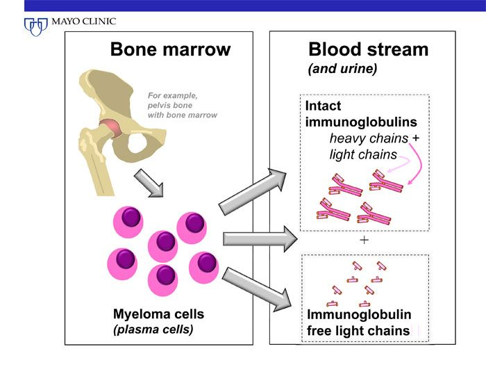 Myeloma Cells Anatomy Of The Human Body Multiple