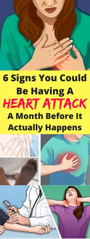 6 Signs You Could Be Having A Heart Attack – A Month Before It Actually Happens -