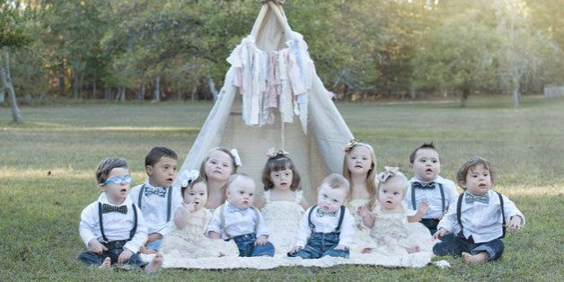 De magnifiques photos soulignent la beauté d'enfants atteints de trisomie 21